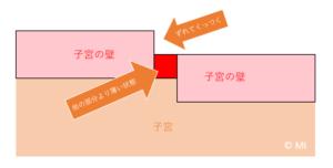 子宮の壁の説明